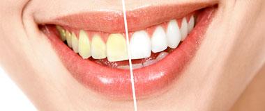 Kosmetisk tandvård inte undantagen från moms